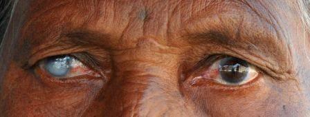 One-eye'd Joe