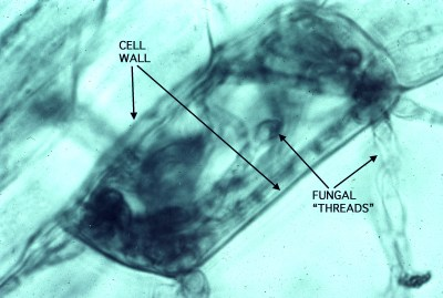 Fungal hyphae coiled in blueberry root cell