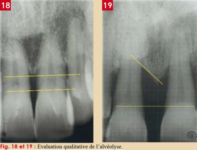 """Résultat de recherche d'images pour """"alvéolyse dentaire"""""""