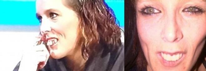 Insultata sul web per i suoi denti sporgenti: la tv paga l'operazione ad Emma