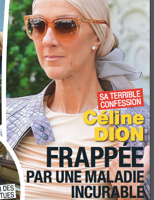 celine-dion-frappee-maladie-incurable-degenerescence-maculaire