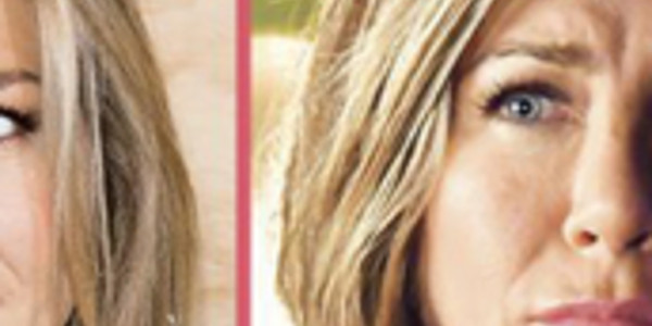 jennifer-aniston-visage-deforme-encore-un-desagreable-rate-chirurgical