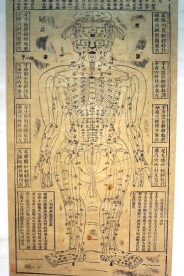 Schéma d'acuponcture