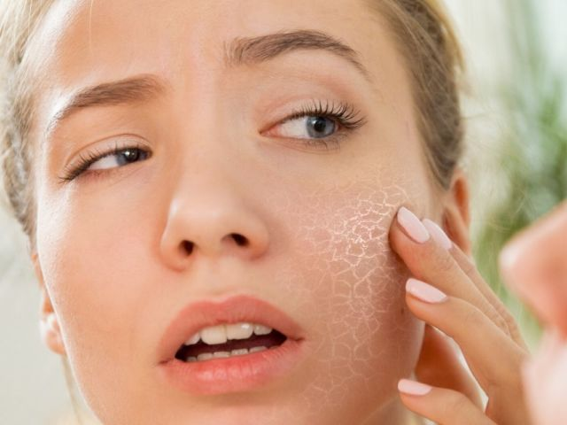 benzoyl peroxide and why you should avoid it Holistic Lifestyle by Leigh Ann Lindsey