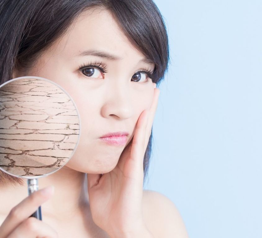 8 Natural Remedies for Dry Skin