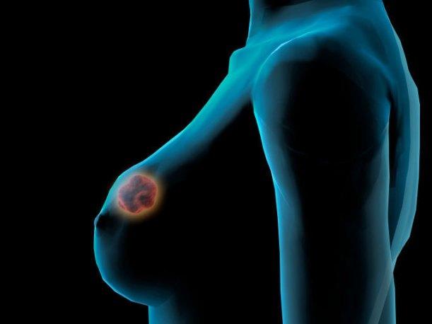 Cancer-du-sein-traiter-la-tumeur-directement-dans-le-sein