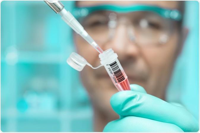 Coronavirus : des vaccins issus de fœtus avortés !