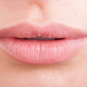 Hylauronic acid or botox female lips. Beauty and healthcare concept