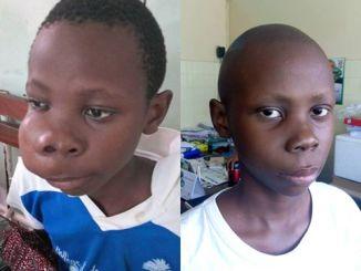 Santé/ Chu de Treichville, L'ONG Aline Cancers d'Enfants dédie une journée au centre d'oncologie pédiatrique