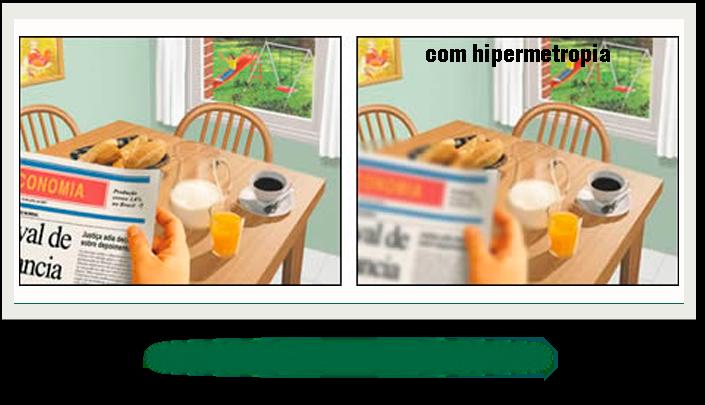 hipermetropia-3b9ef410_089eee67