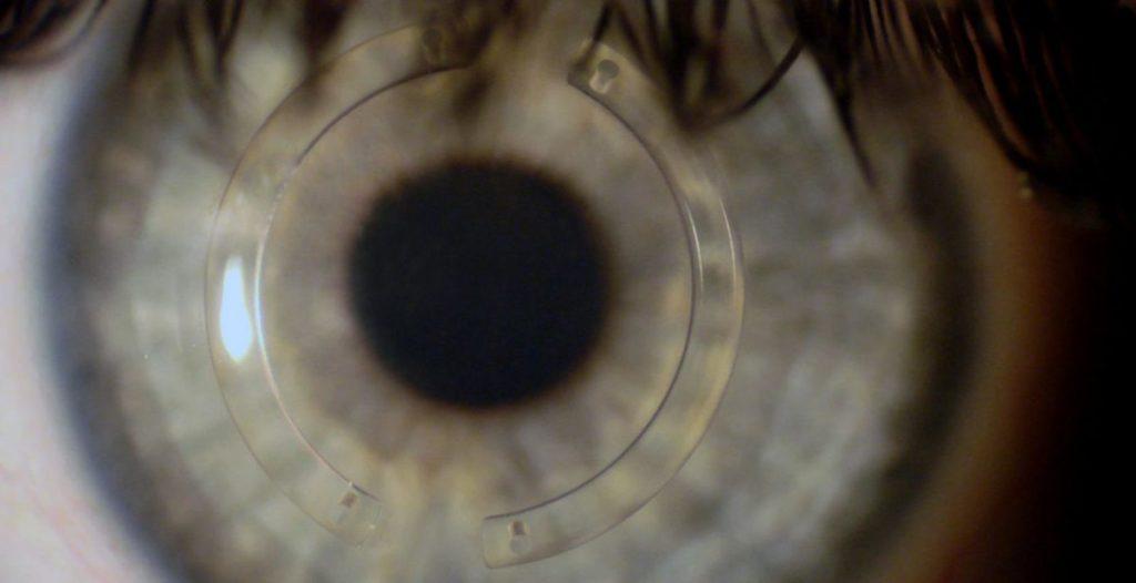 implante de anel de ferrara