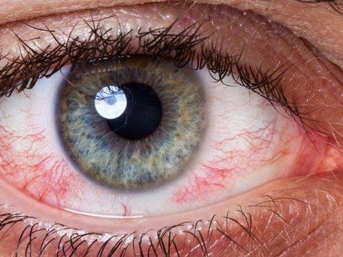 olho com ceratite