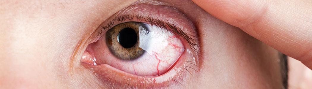 Olho esquerdo aberto e um pouco vermelho