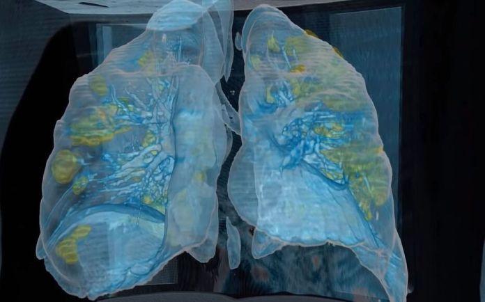 Capture d'écran d'une vidéo en 3D d'une paire de poumons infectés par le Covid-19.
