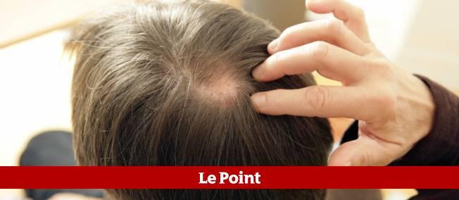 Des chercheurs américains ont peut-être trouvé un moyen de faire repousser les cheveux.