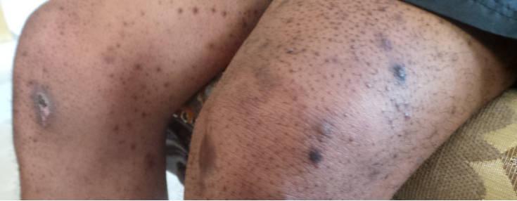 Le blanchiment à la peau du paupières