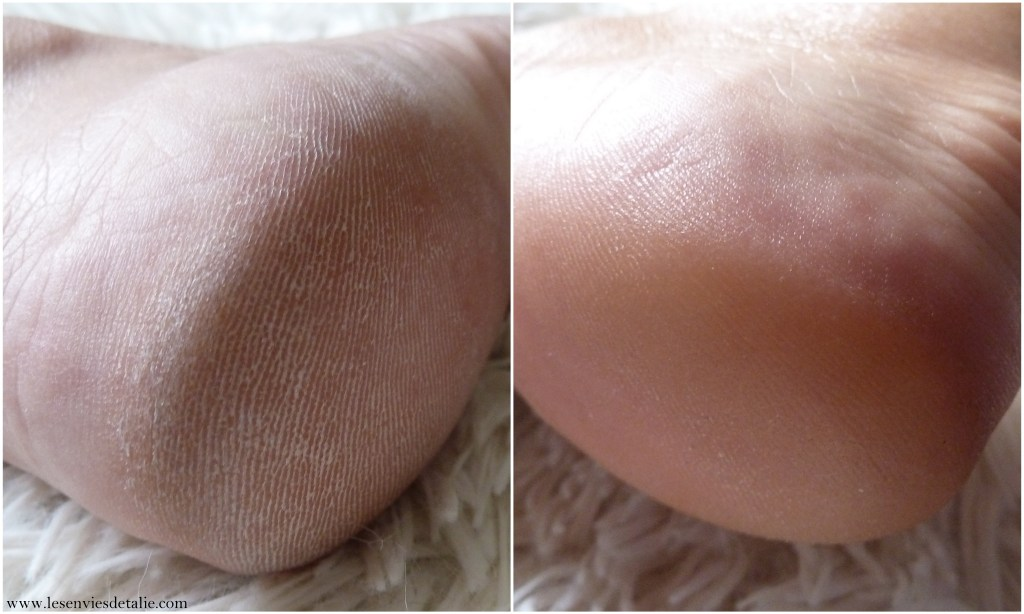 Avant/Après 4 applications du peeling LovaSkin