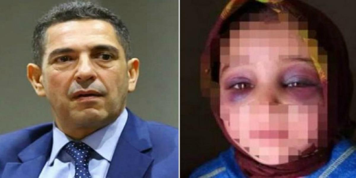 Fillette tabassée à Taroudant: Amzazi sort (enfin) du silence