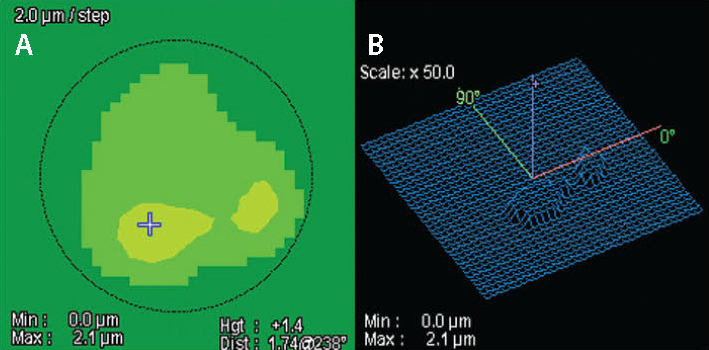 Figure 2. The map on the left shows the proposed tissue removal (A). The 3D mesh on the right shows how CATz plans to regularize the corneal topography (B).