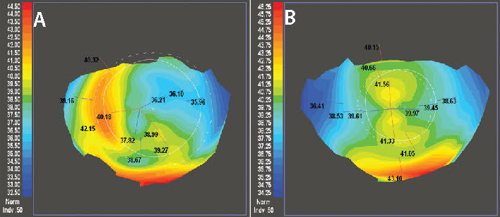 Figure 3. The left topography shows significant irregular astigmatism following full thickness penetrating keratoplasty (A). On the right is the post-operative topography one year after CATz-driven PRK (B). Best corrected spectacle improved from 20/40- to 20/25.