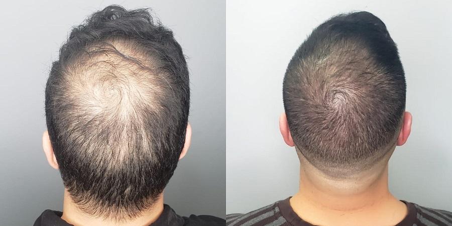 Tatouage du cuir chevelu pour masquer les débuts de calvitie