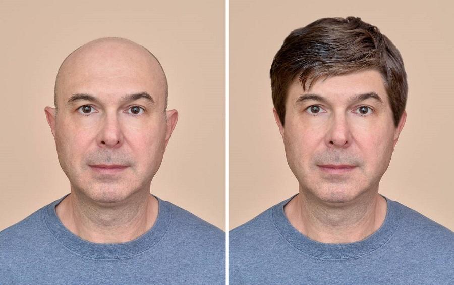 prothèses capillaires pour homme