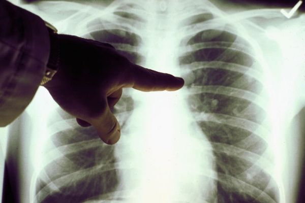 20% of Delhi's lung cancer patients non-smokers: Doctors
