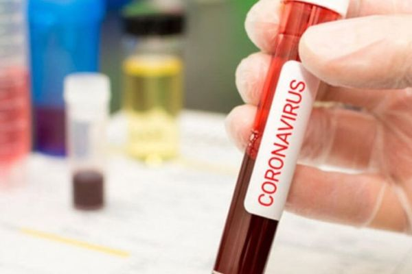 coronavirus blood sample