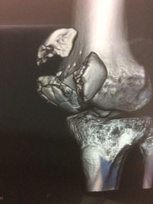 ひ、膝が...膝の皿がきれいに割れてしまった!