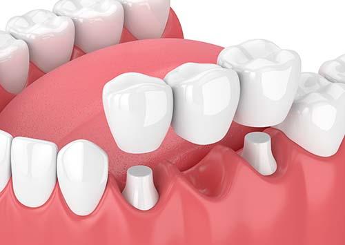 Dental Bridge services in Victorville CA