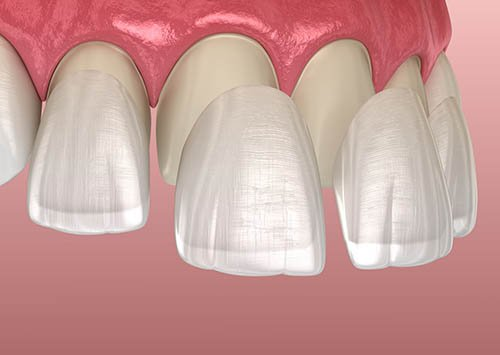 3 Pros & Cons About Dental Veneers | Liberty Village Dental Care