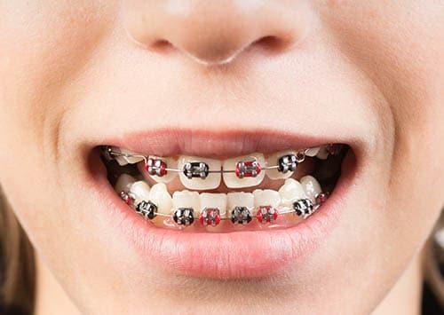 Dental Orthodontics Victorville, Metal Braces