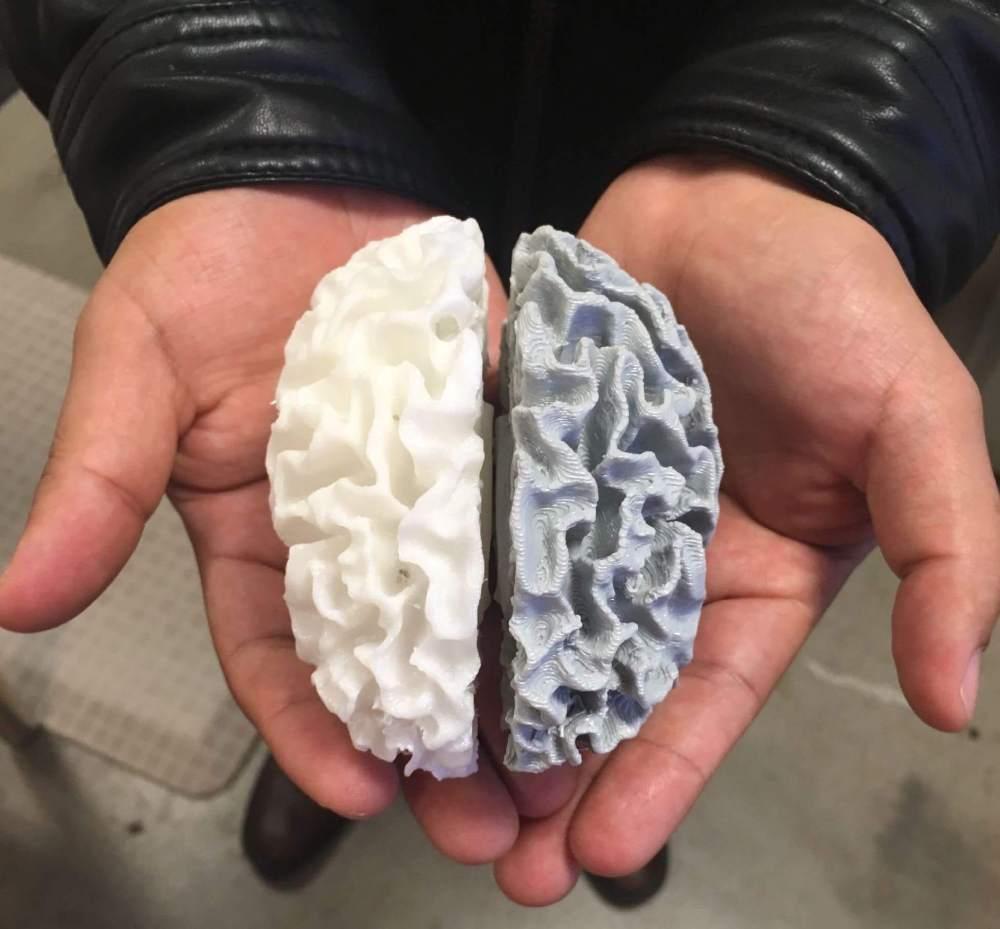 Hands holding 3D printed brain model
