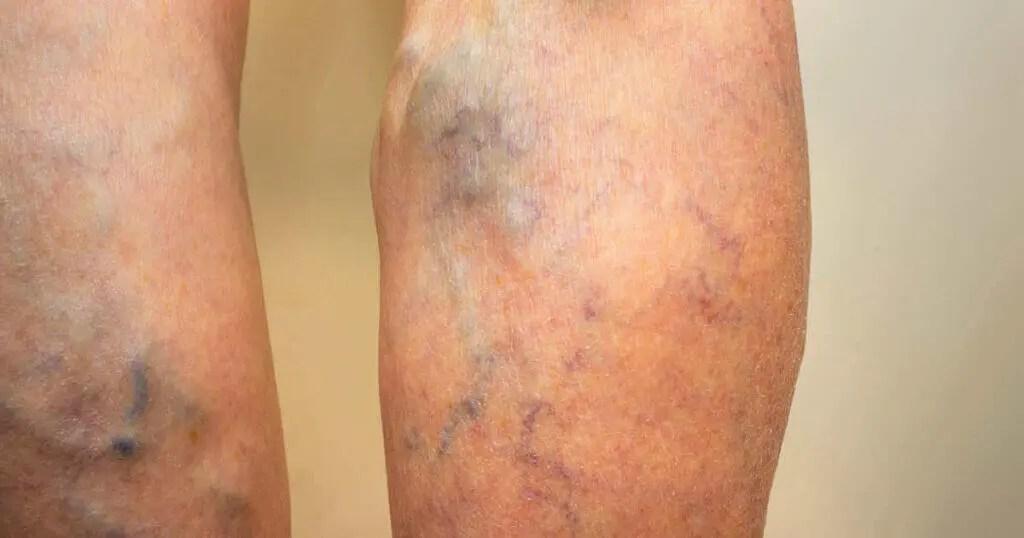 thrombose erkennen behandeln und
