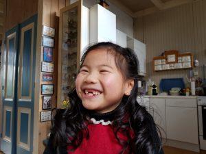 wisselen,tanden