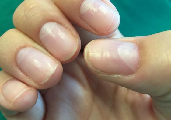 splijtende nagels