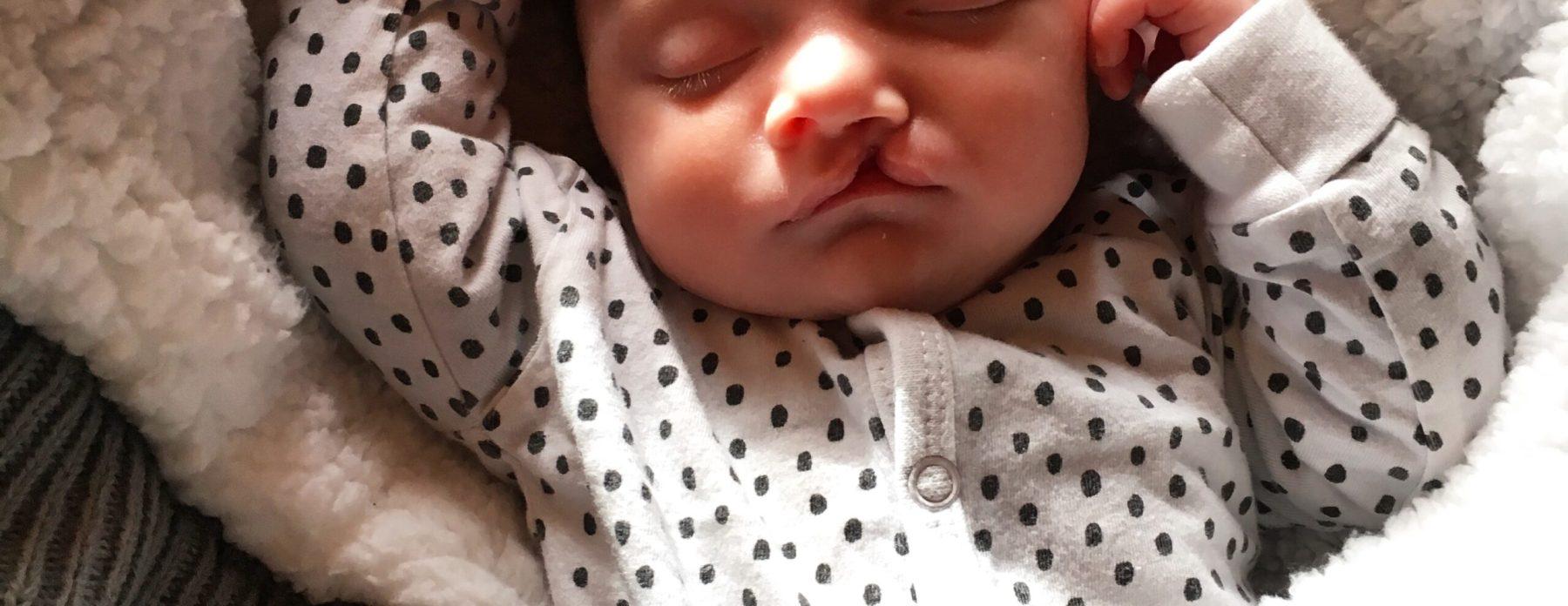 schisis baby