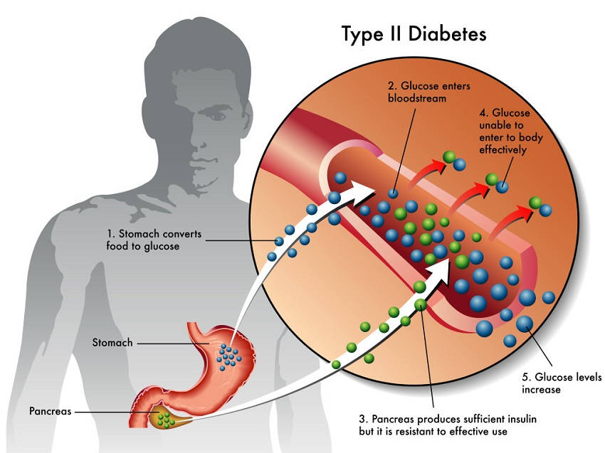 Image result for early diabetes
