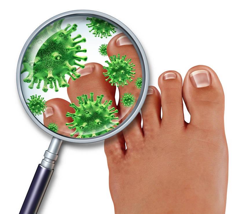 Toenail Fungus  Body Is Full of Toxins