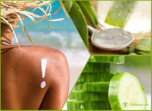 Home Remedies for Itchy Sunburn