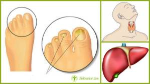 Yellow Toenails Liver Thyroid