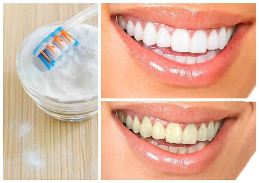 How To Whiten Teeth Naturally In Minutes At Home
