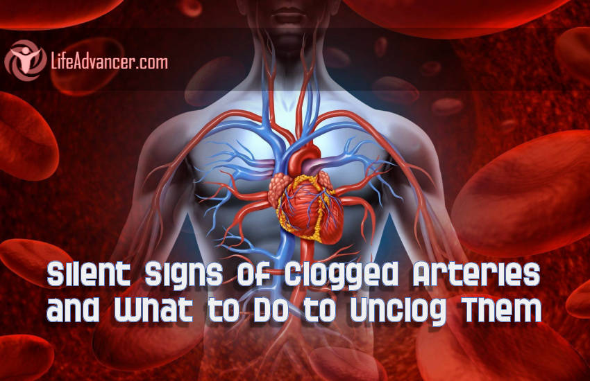 Signs Clogged Arteries What to Do to Unclog