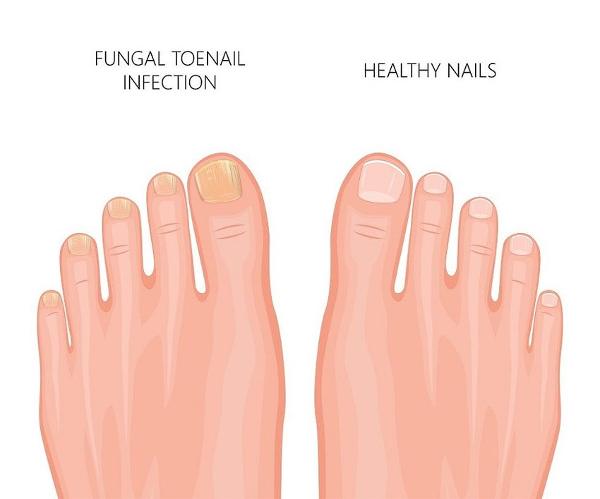 Yellow Toenails: What They Say about Your Health and How to Treat Them