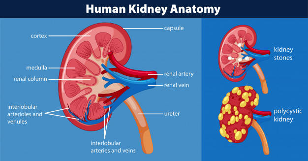 What Is Nephrolithiasis And How To Relieve It With These Fitness Exercises