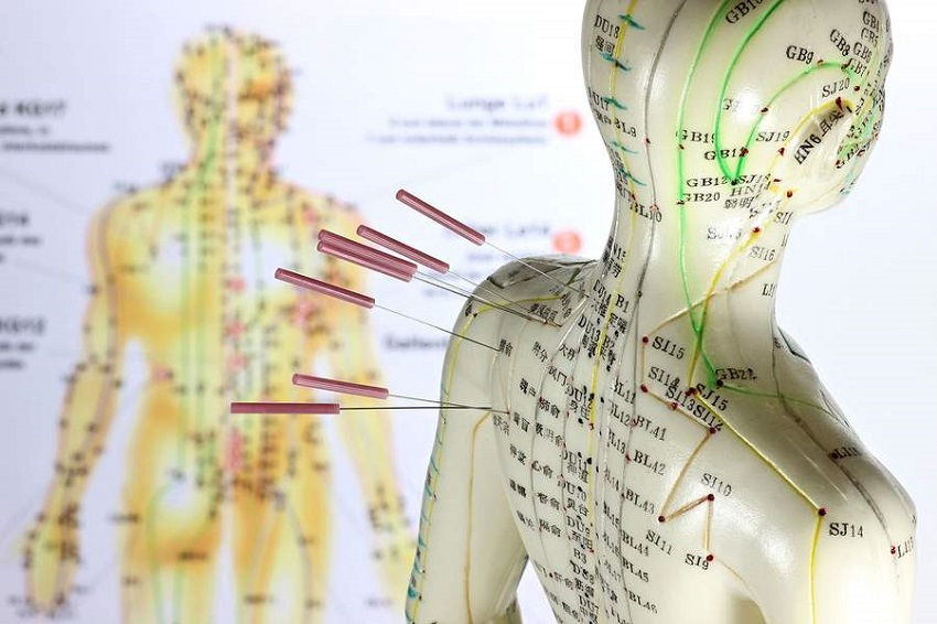 Acupuncture for anxiety works