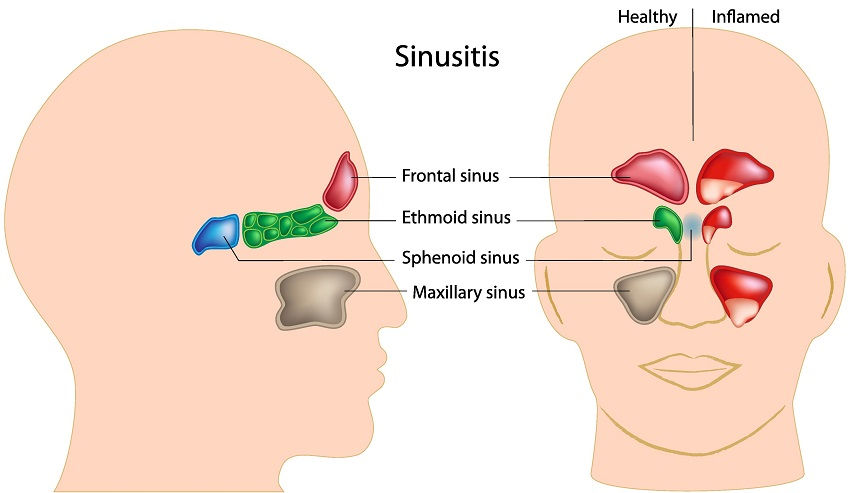 Sinusite - The 10 Most Common Sinus Headache Symptoms