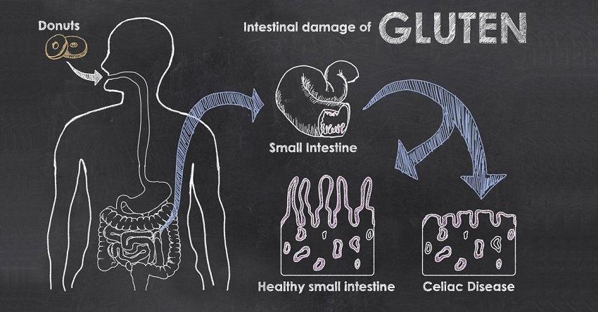 Know About Gluten Allergy