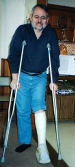 Jim in a cast, 2001