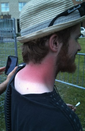 Why you need sunscreen